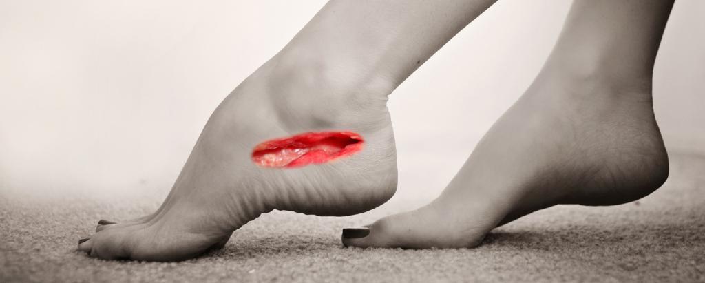 к чему снится рана на ноге
