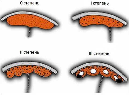 Плацента перед родами 10