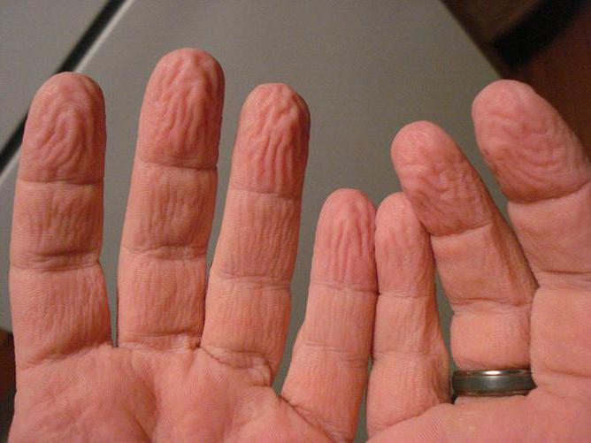 Палец от воды морщится кожа