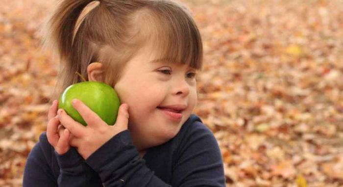 новорожденные дети с синдромом дауна признаки у ребенка