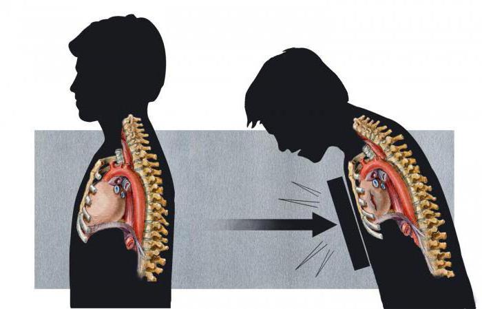 Сильный ушиб легкого: симптомы и лечение