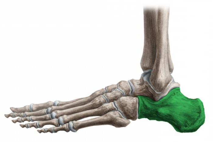воспаление пяточной кости
