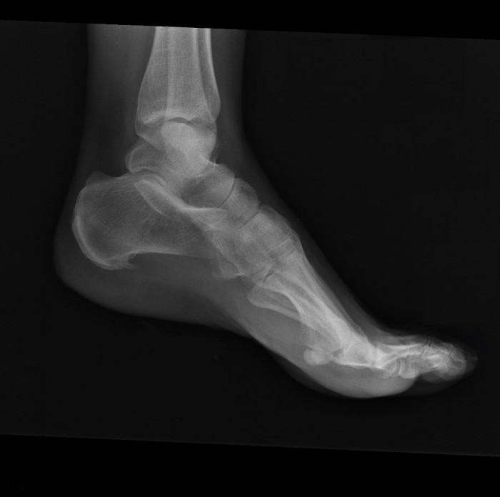 деформация пяточной кости