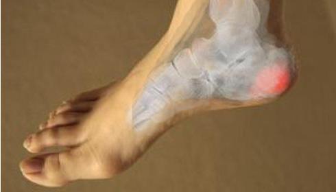 травмы пяточной кости