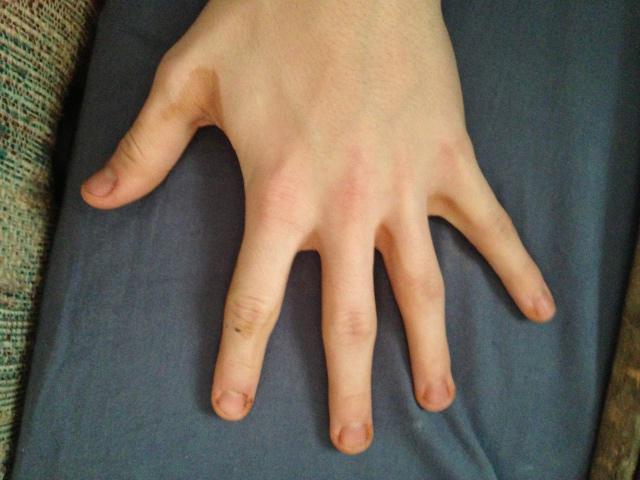 чешутся руки между пальцами