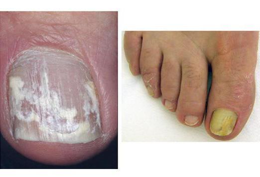 Грибок ногтевой пластины на ногах лечение препараты