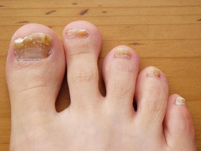 Гомеопатические средства против грибка ногтей