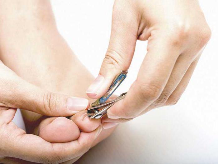 Очень быстро вылечить грибок ногтей на ногах