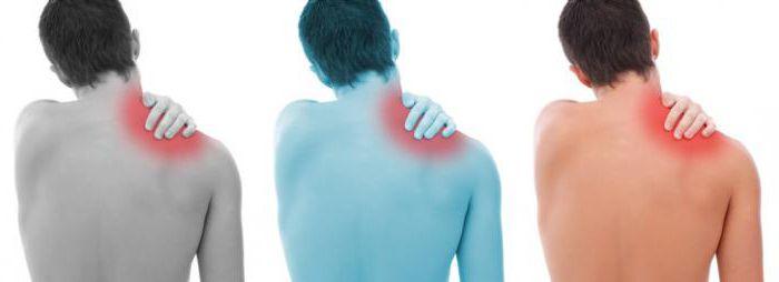 остеохондроз шейно плечевого сустава симптомы