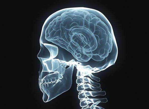 хордома основания черепа продолжительность жизни