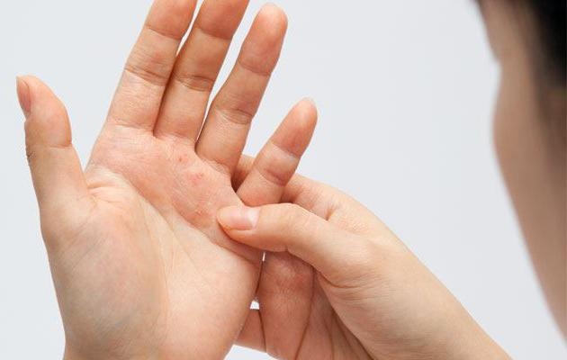 Лечение сухой экземы на руках народными средствами отзывы