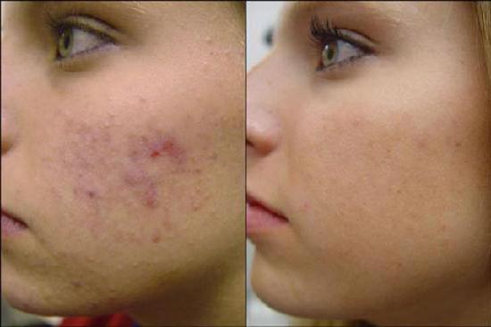 миндальный пилинг для кожи лица