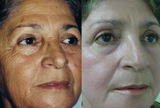миндальный химический пилинг лица
