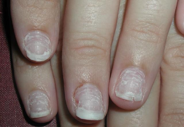 Зеленое пятно на ногте 3