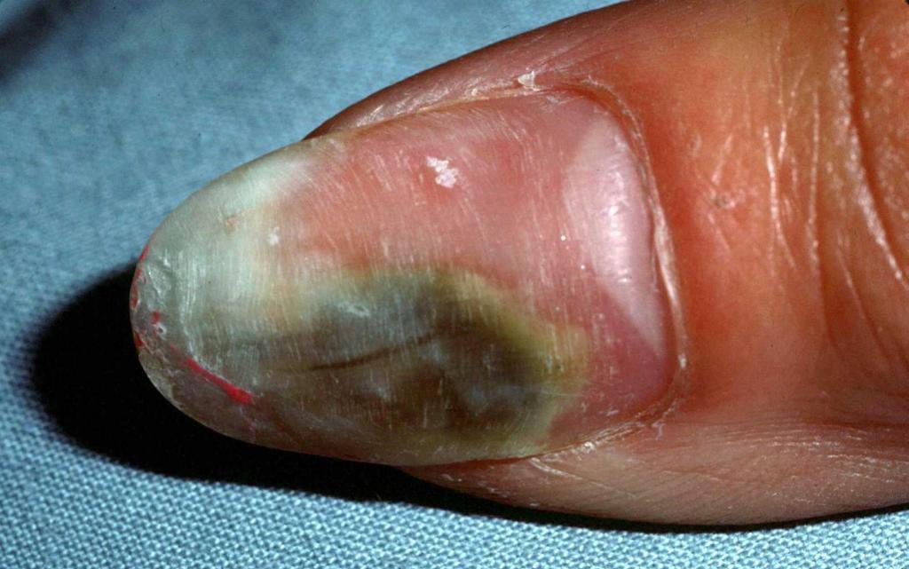 Плесень на ногтях: причины появления и лечение