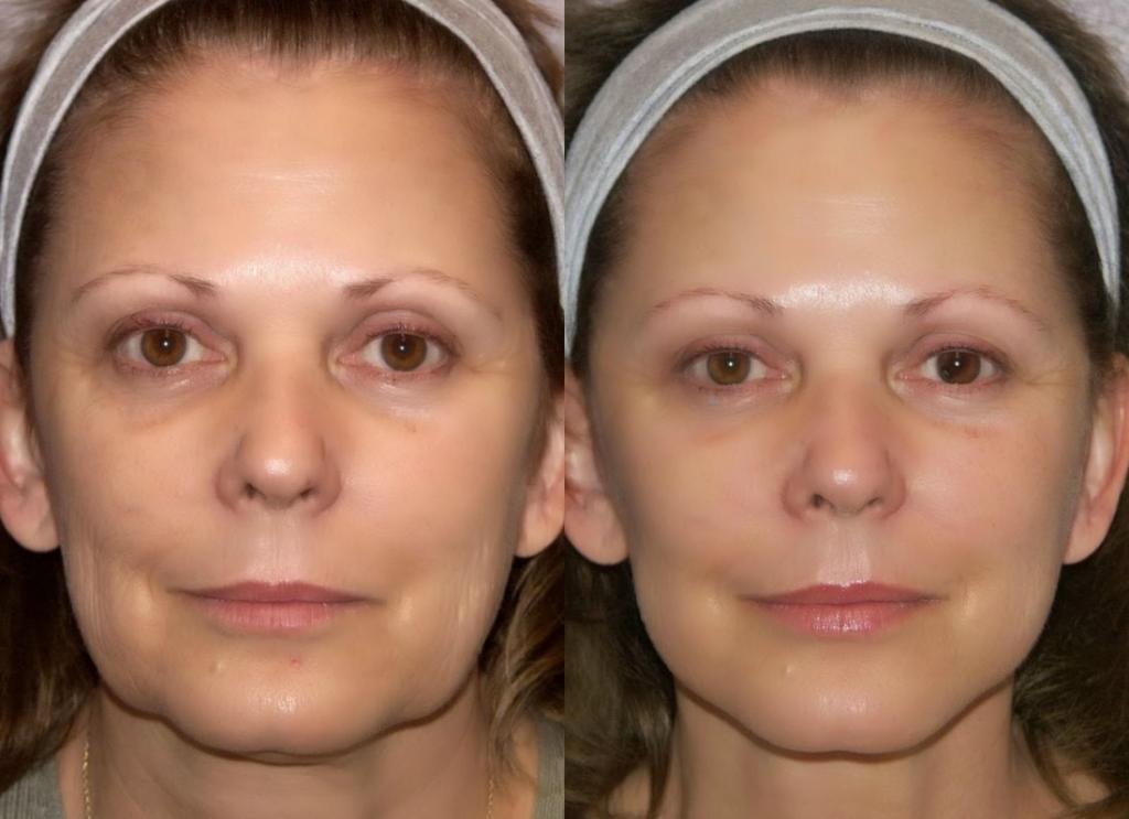 Аппаратная косметология для омоложения лица: отзывы, виды процедур, рекомендации