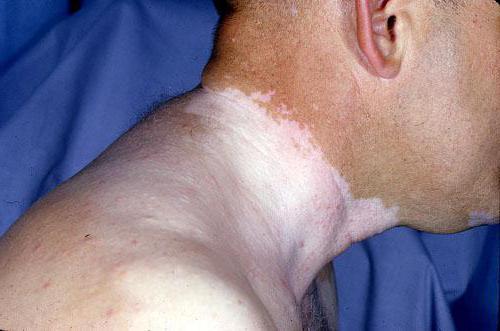 Витилиго - это что такое? Причины, симптомы и лечение витилиго