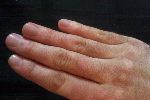 Почему развивается артрит кистей рук