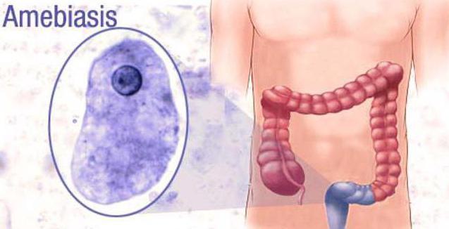 признаки амебиаза кишечного