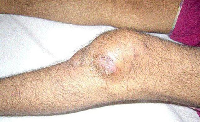 Туберкулез костного мозга