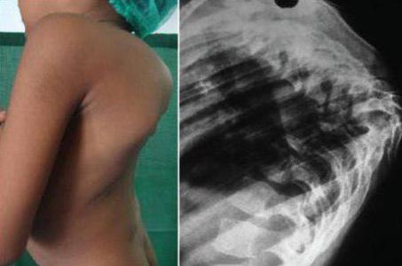 Туберкулез костной системы