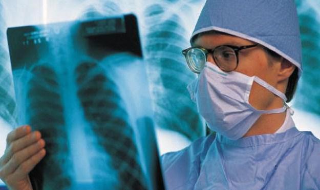 Костный туберкулез лечение