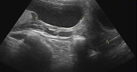 Расшифровка результатов ультразвуковой диагностики при беременности