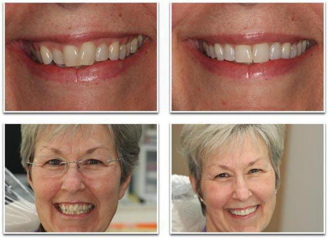 Брекеты на нижнюю челюсть фото до и после