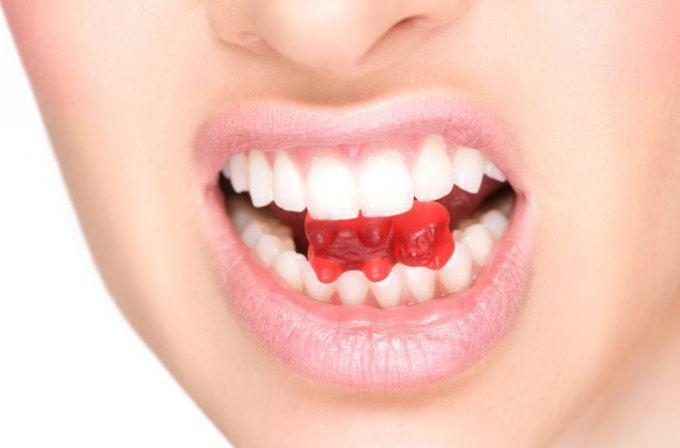Коронки пластмассовые на передние зубы: показания, отзывы, фото