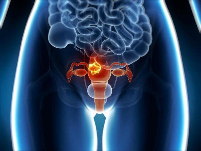 Смерть от рака матки 23