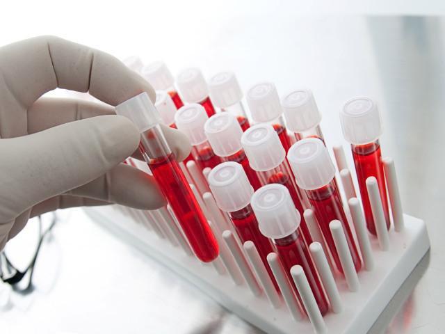 диагностика панкреатита анализы крови