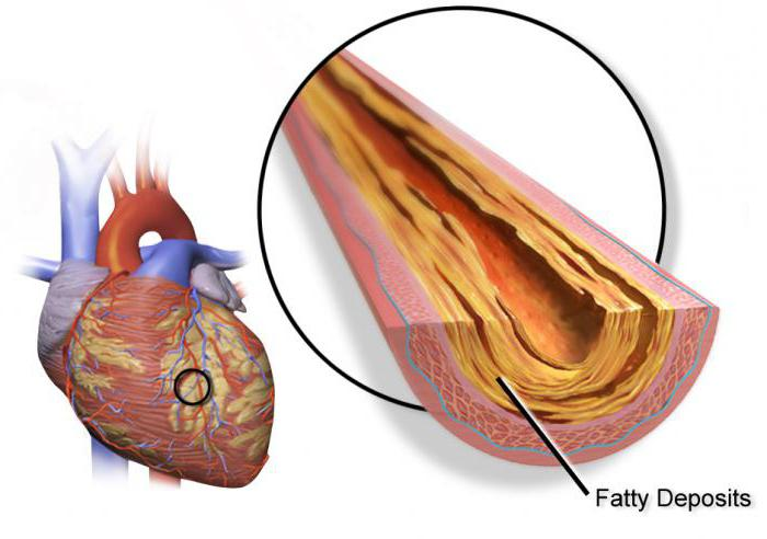 Ибс стенокардия симптомы и лечение