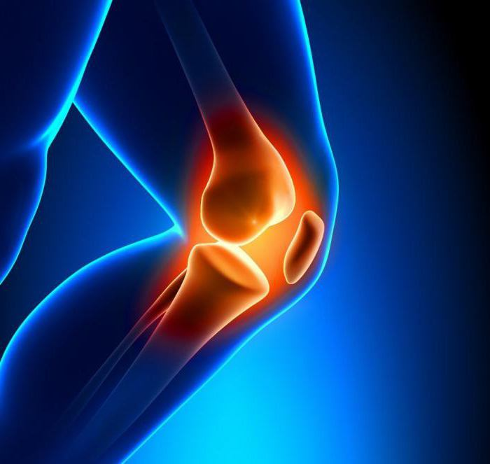Разрыв передней крестообразной связки коленного сустава