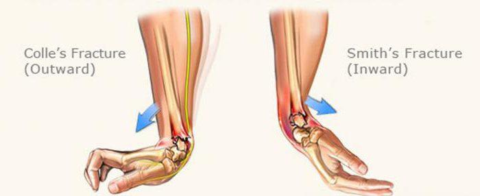 Переломы лучевой кости в типичном месте: описание, симптомы и особенности лечения