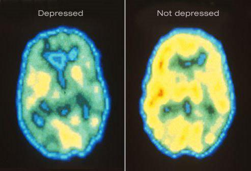 рекуррентное депрессивное расстройство история болезни