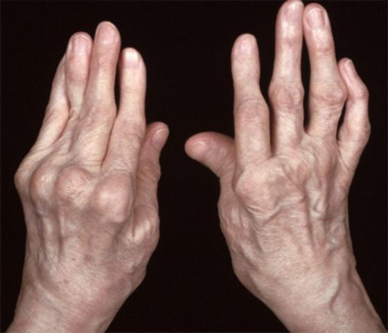 ювенильный ревматоидный артрит код по мкб 10