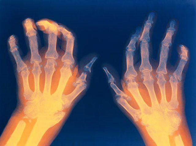 ювенильный ревматоидный артрит мкб 10
