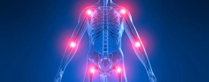 ревматидный артрит мкб 10