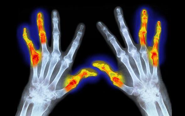 мкб 10 ревматоидный артрит