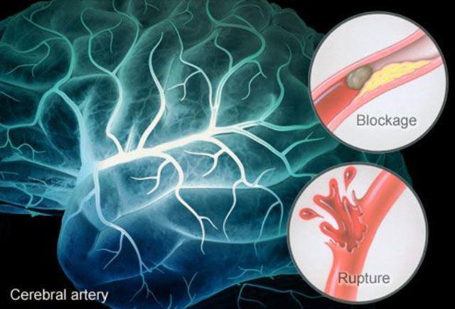 Ангиоэнцефалопатия головного мозга остеохондроз