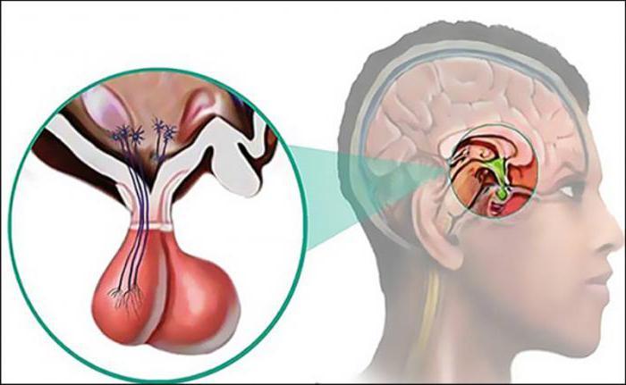 Пролактинома гипофиза: причины, симптомы, диагностика и лечение. За что отвечает гипофиз?