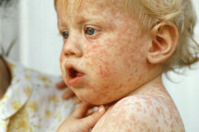 Эпидемия кори: актуальность, опасность, защита