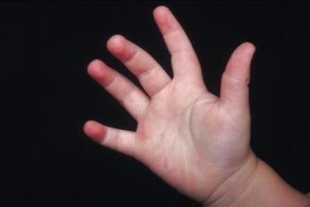 У ребенка сыпь на руках и коленях