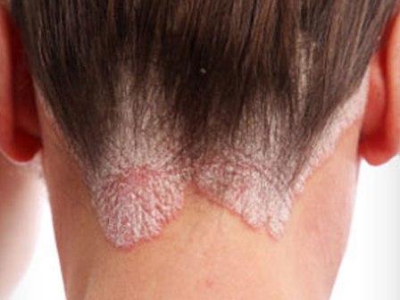 Псориаз: причины возникновения, симптомы и лечение