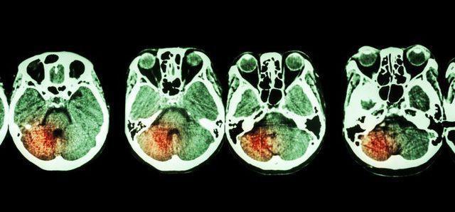 Геморрагический инсульт лечение