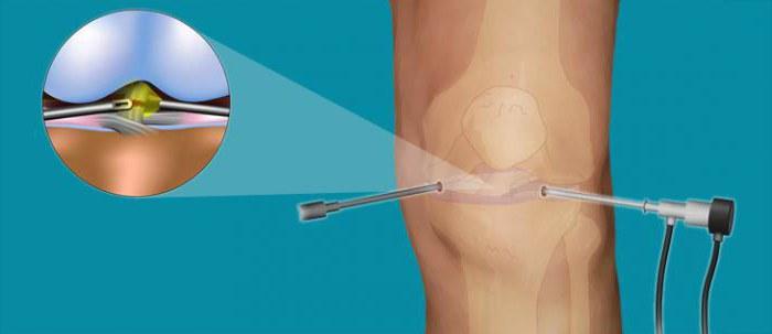 Артроскопия коленного сустава операция и последствия