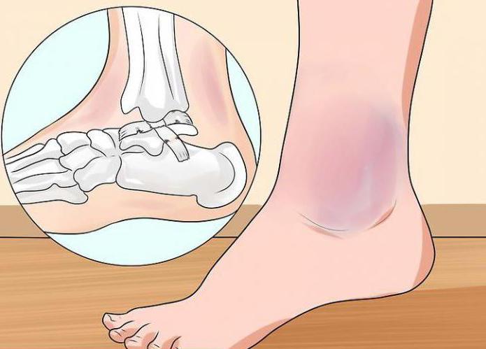 первая медицинская помощь при травме голеностопного сустава