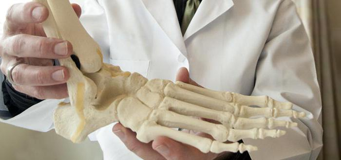 артрит голеностопного сустава симптомы и лечение