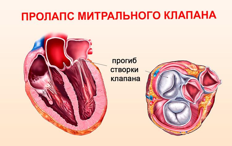 пролапс митрального клапана у детей причины