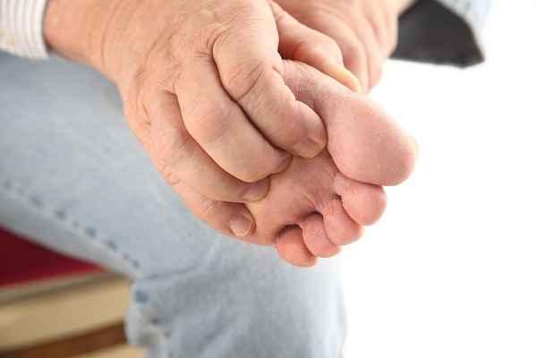 шелушится кожа на пальцах ног причины